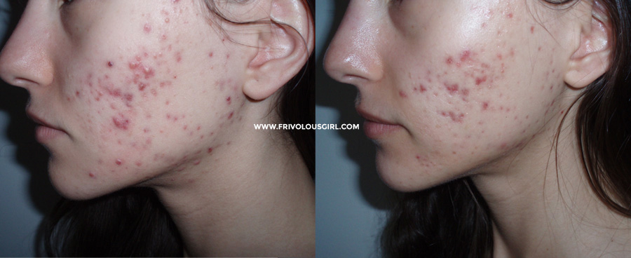 vitamin b5 + l-cysteine acne before after