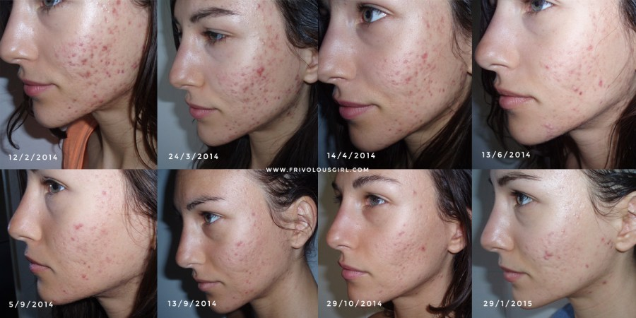 acne before and after probiotics
