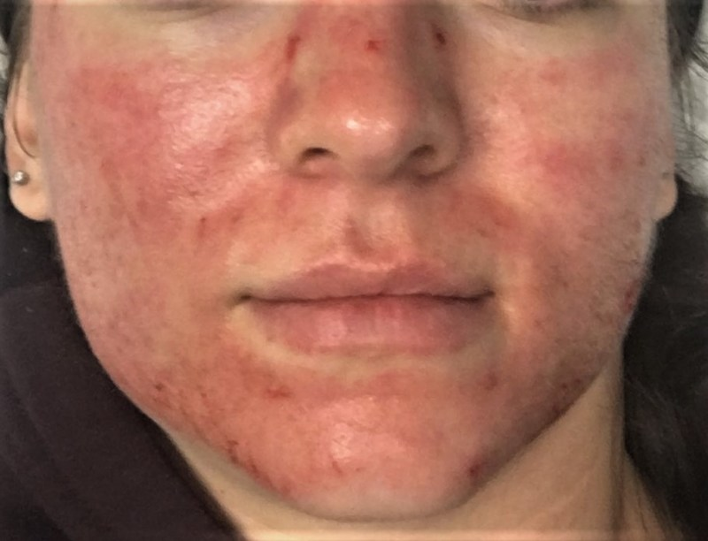MICRONEEDLING AFTERMATH