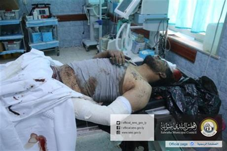 In this picture released online by the Sabratha Municipal Council on Friday, Feb. 19, 2016 a wounded man lies in a hospital after U.S. warplanes struck an Islamic State training camp in Sabratha, Libya near the Tunisian border. A Tunisian described as a key extremist operative probably was killed, the Pentagon announced. In Libya, local officials estimated that more than 40 people were killed with more wounded, some critically. (Sabratha Municipal Council via AP) MANDATORY CREDIT