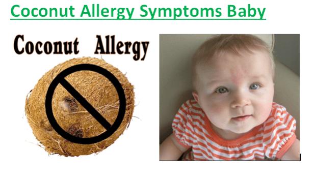 Coconut Allergy Symptoms Baby