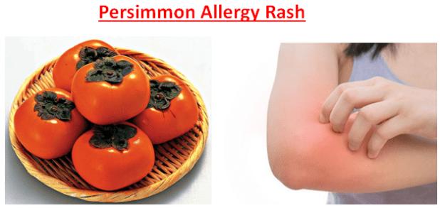 Persimmon Allergy Rash