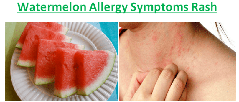 Watermelon Allergy Symptoms Rash