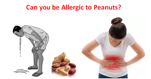 Can You be allergic to peanuts?