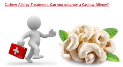 Can you outgrow a Cashew Allergy?