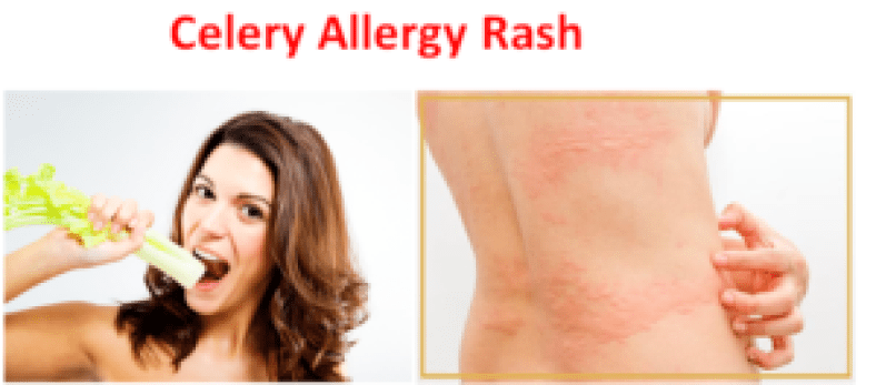 Celery Allergy Rash