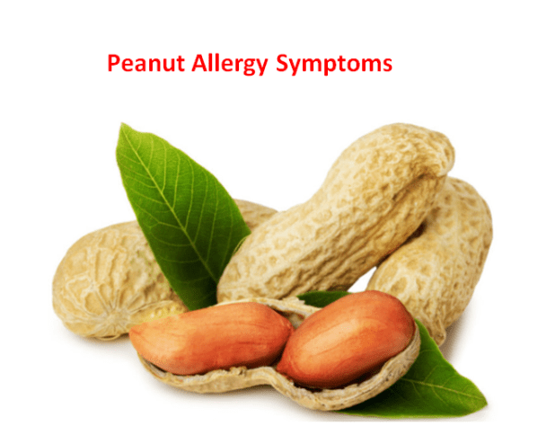 Peanut Allergy Symptoms