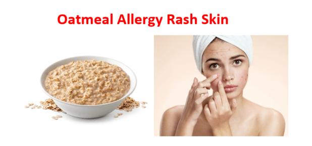 Oatmeal allergy Rash skin
