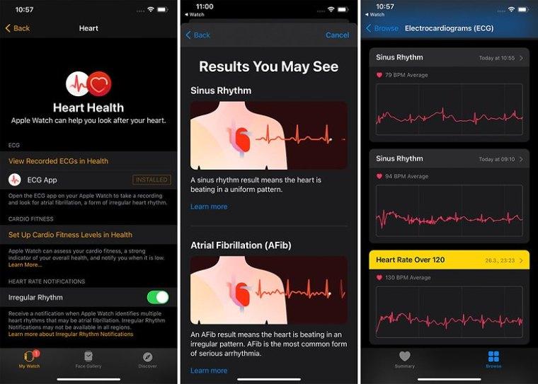 iPhone Apple Health Watch ECG