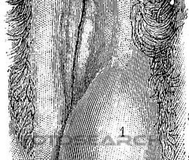 Clipart Abscess Of The Labia Majora Vintage Engraving Fotosearch