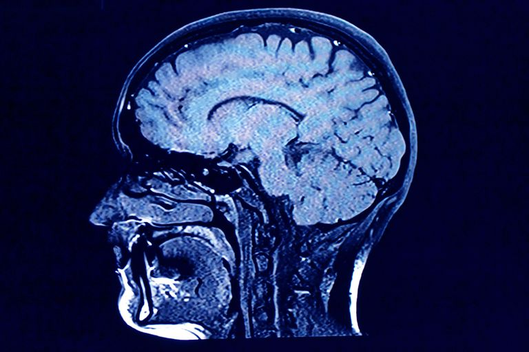 Beyin kafa taraması