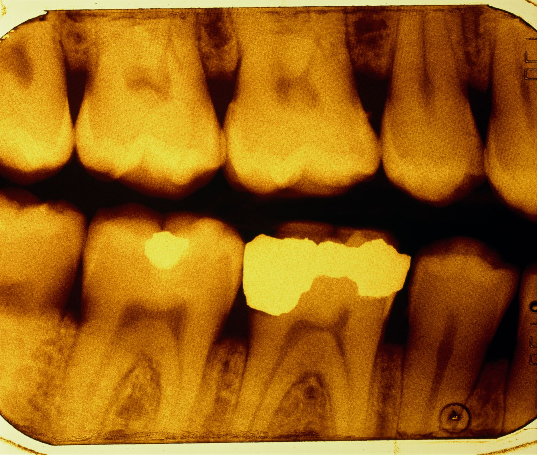 Different Types Of Dental Fillings