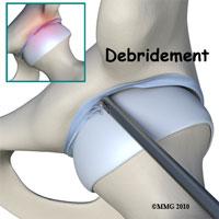 Hip Debridement Surgery Seattle