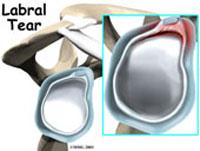 shoulder-labral-fig1