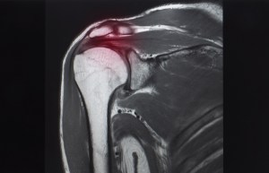 MRI of shoulder showing rotator cuff tendon tear. Red highlight focused on the tear tendon.