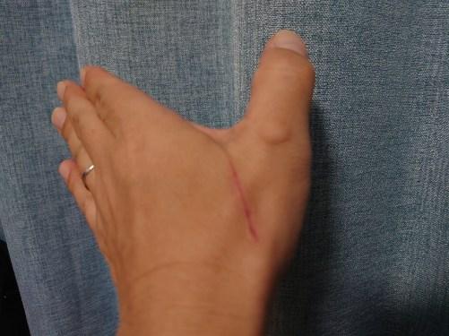 我が手の傷口