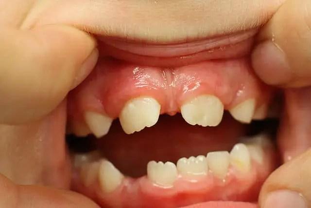 maxillary midline diastema