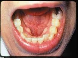 मुह के कैंसर का उपचार