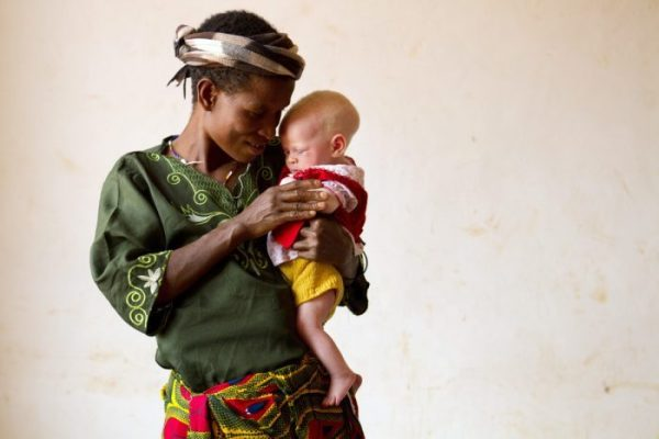 Белые негры в Танзании (30 фото)