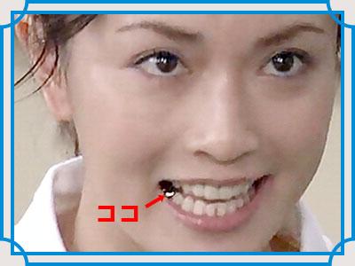 長谷川京子 虫歯