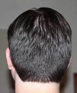 100,000 Hairs