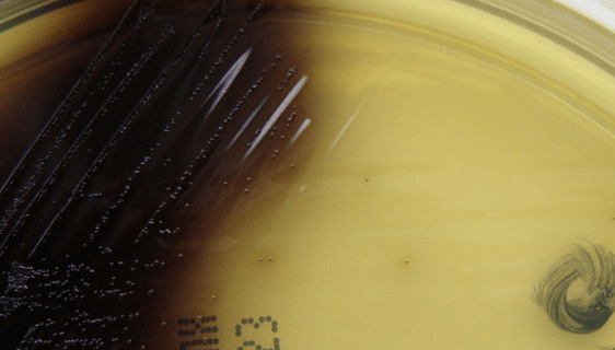 Listeria monocytogenes on oxford agar