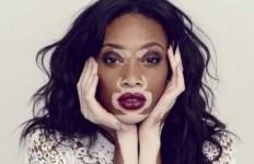 Winnie Harlow - fashion model and public spokesperson on the skin condition vitiligo