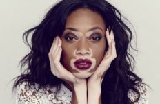 Winnie Harlow - fashion model and public spokesperson on the skin condition vitiligo