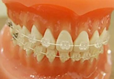 JYJ ジェジュン 歯 歯列矯正