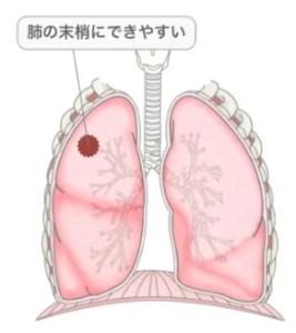 中村獅童 肺腺がん