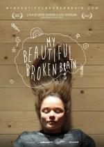 My Beautiful Broken Brain cda online