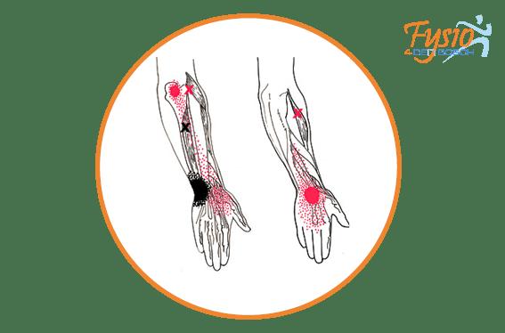 hand polsklachten fysio 4 denbosch