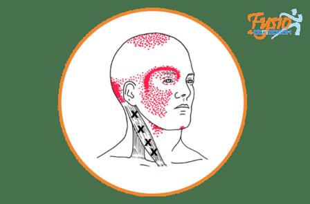migraine hoofdpijn fysio 4 denbosch