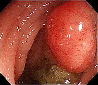 大腸鏡檢查及息肉切除 - Jeff & Jill的窩 - udn部落格