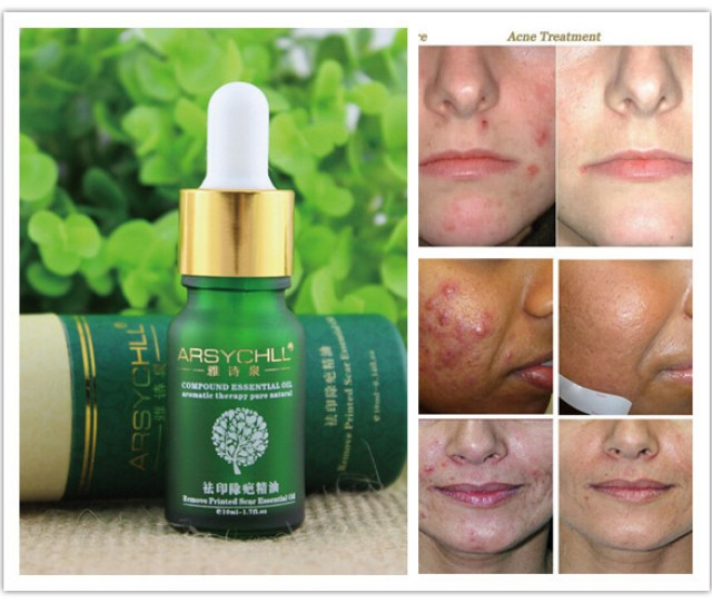 Pimple Treatment Products For The Removal Of Pimples