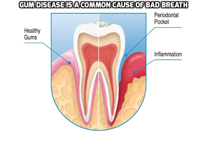 Gum Disease Is a Common Cause of Bad Breath - Gum disease occurs just below the gum line by causing the inflammation and breakdown of the tooth's attachment site and its supporting tissues. Although gum disease is a chief cause of bad breath, it is generally treatable by an oral-healthcare professional.