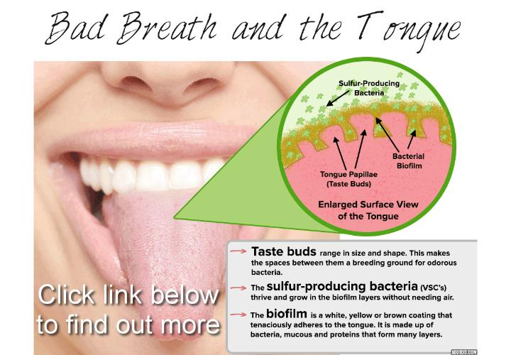 Revealing here for you the main bad breath-related conditions - The main bad breath-related conditions are fairly straightforward. Most patients exhibit persistent oral odor or an unpleasant taste in the mouth. Although bad breath is common, its effects can be serious, as halitosis is a form of oral disease that can accompany additional and more-severe health concerns.