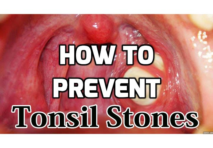 How Best To Prevent Tonsil Stones? The most effective non-surgical methods to prevent tonsil stones involve keeping your mouth and throat clean, as this reduces the amount of particles and pathogens that may accumulate in the throat and lead to tonsil-stone development.