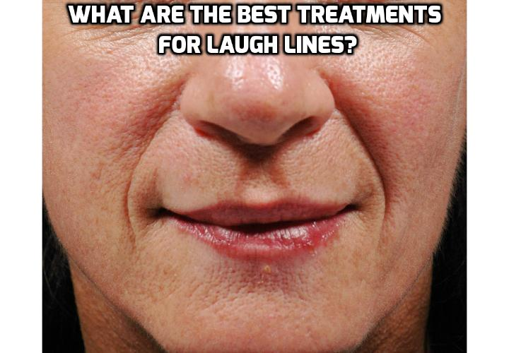 What are the Best Treatments for Laugh Lines? Read on here to understand what are laugh lines, what causes laugh lines and what are the best treatments for laugh lines.