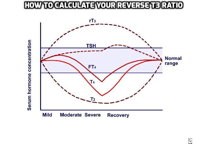 Why Knowing How to Calculate Your Reverse T3 Ratio Helps to Assess Overall Thyroid Health? What is reverse T3, what happens you have reverse T3 and how to calculate your reverse T3 ratio which is important to assess your overall thyroid health? Read on to find out more.