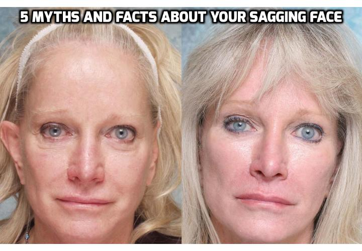 5 Myths and Facts About Your Sagging Face - For most of us, our jangly jowls and hanging cheeks are a source of chagrin as we age. Here, five myths and facts about sagging face, plus ways to stop the droop