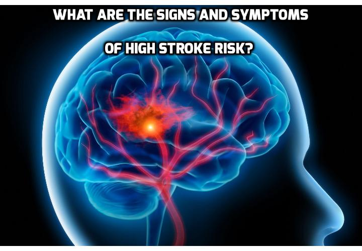 This Innocent Act May Indicate High Stroke Risk - Stroke often seems to come without any warning, leaving a person either dead or severely paralyzed. Most people never get over it, even if they get through it. Your chance of surviving with minimal complications is greatly increased if you catch it in time. But that's often difficult to do. New research from Holland, however, provides one clear indicator of high stroke risk. Keep an eye out for this one and you may be able to take appropriate actions in time.