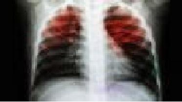 Foto de Tuberculose: um problema de saúde pública
