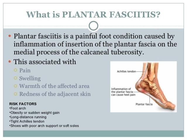 plantar-fasciitis-3-728