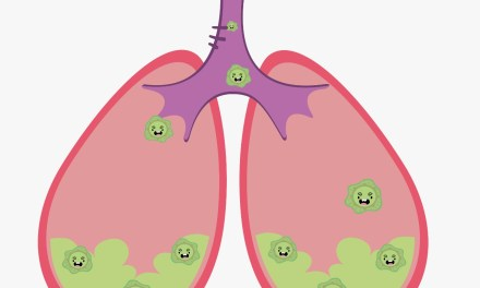 Fisioterapia como tratamiento complementario contra la fibrosis quística