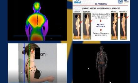 Tecnologías 3D en Fisioterapia y su aplicación clínica