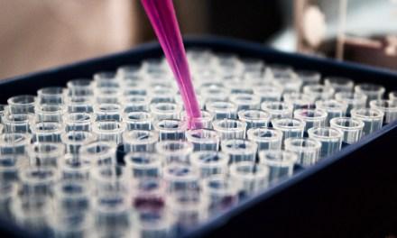 Epidemiología de dos patologías virales que cambiaron al mundo: VIH y COVID-19