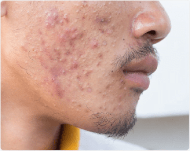Acne is a disorder of the pilosebaceous unit which may present with comedones, inflammatory papules or pustules