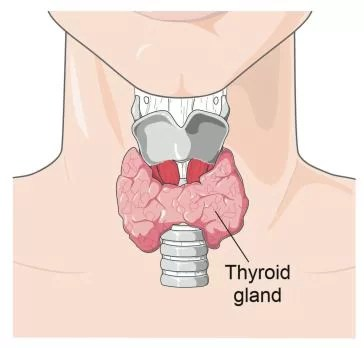 Hypothyroidism | signs | causes and treatment