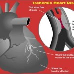 Ischemic Heart disease: Causes, signs and treatment